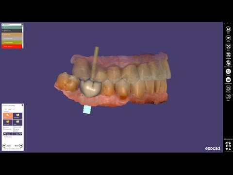exocad ChairsideCAD Matera: new release enables single-visit dentistry with unsurpassed indication spectrum