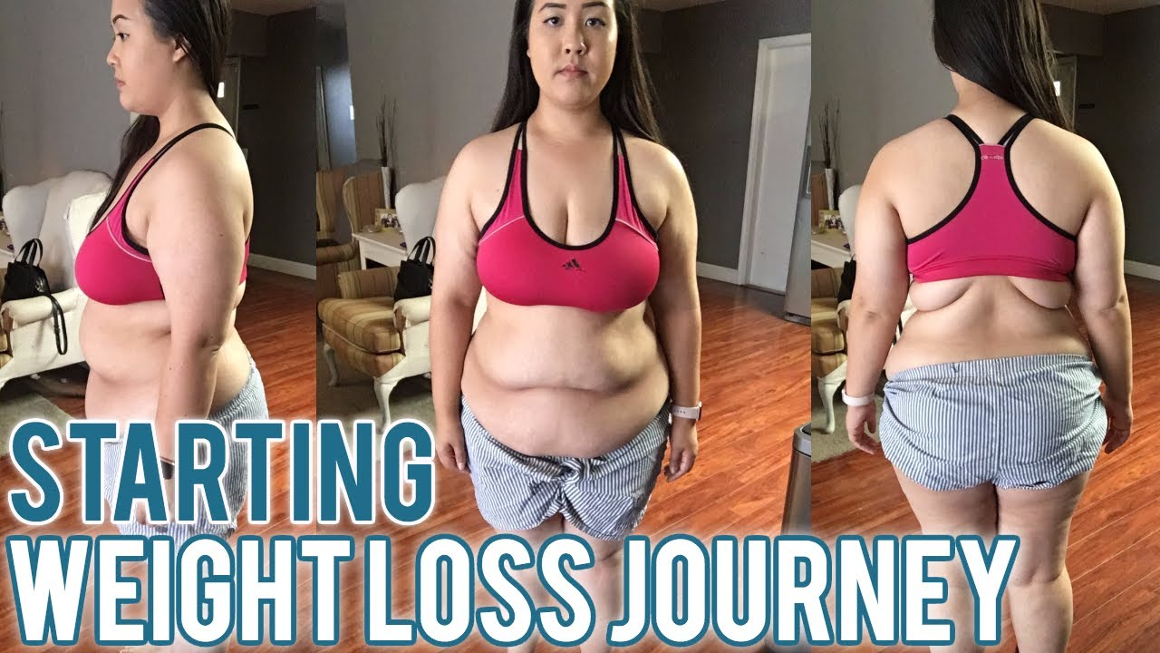 Weight loss after gallbladder removal uk