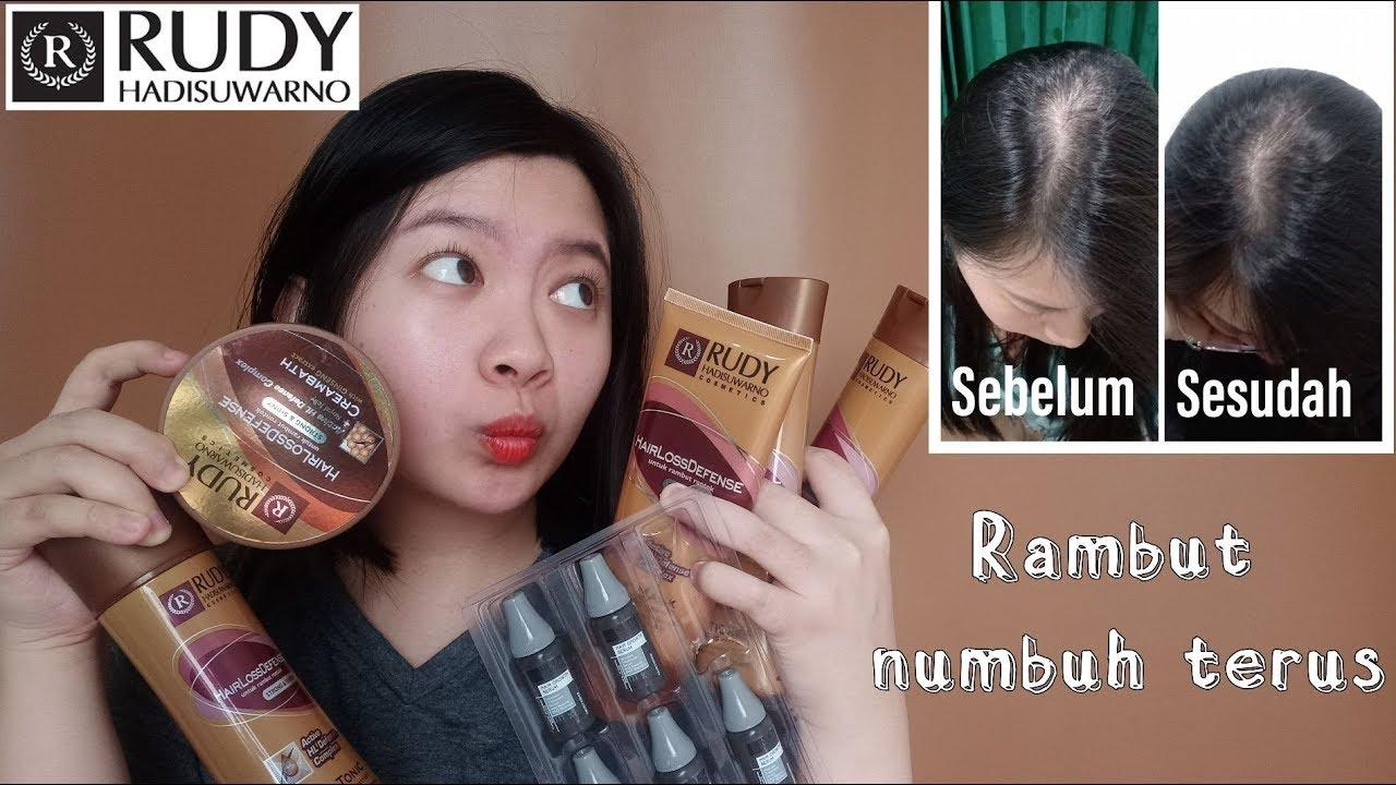 Review Perawatan Rambut Rudy Hadisuwarno | Yang Rambutnya Rontok dan Mau Numbuhin Rambut Yuk Merapat