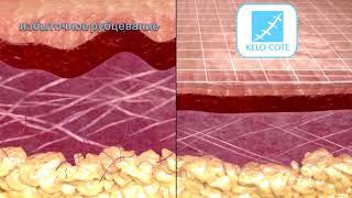 kelo-Cote. Как работает силиконовый гель для уменьшения выраженности рубцов Кело-Коут