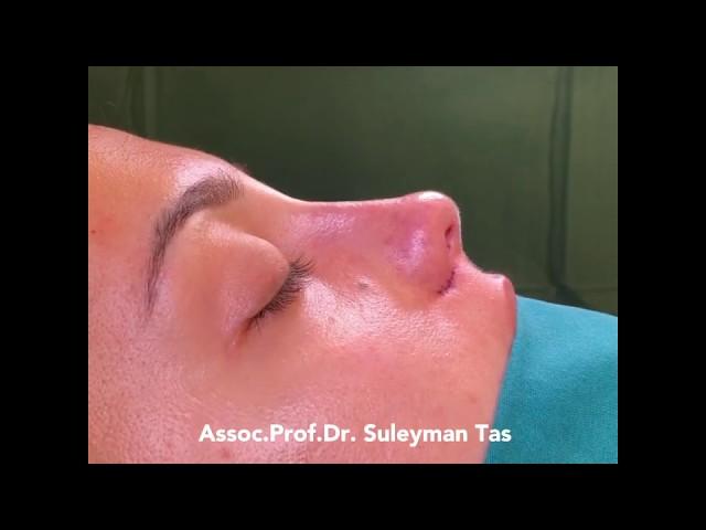 Closed Atraumatic Rhinoplasty | Nose Reduction