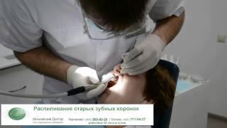видео Зубные коронки в стоматологии
