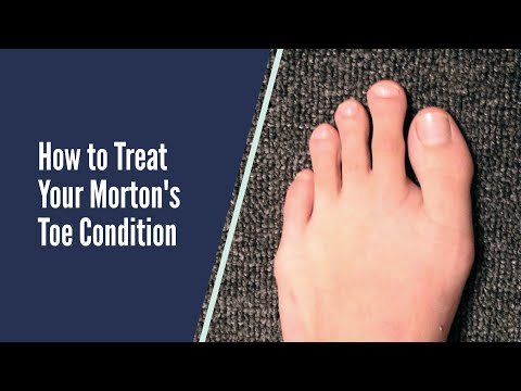 How to Treat your Morton's Toe Foot Geekz