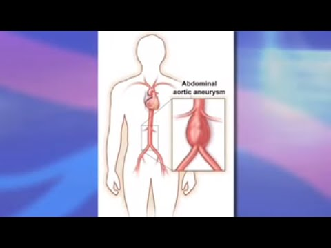 Risks and Benefits of Endovascular Abdominal Aortic Aneurysm Repair (EVAR)