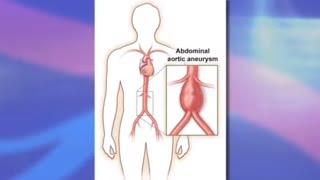 Risks and Benefits of Endovascular Abdominal Aortic Aneurysm Repair (EVAR)