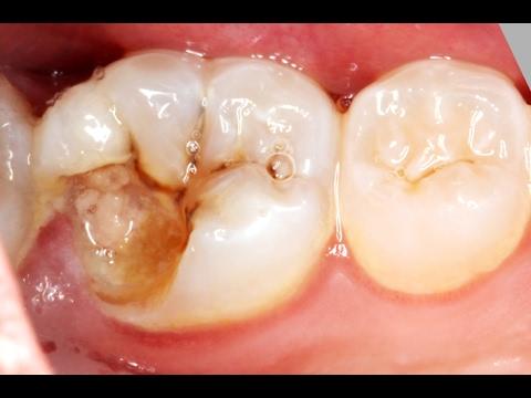 Apresentação do canal - Dente online - YouTube