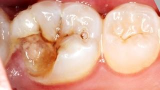 De noite à dor apenas dentes