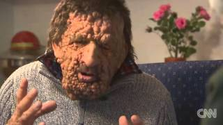 Video Meet The Disfigured Man Whose Embrace With Pope Francis Went Viral download MP3, 3GP, MP4, WEBM, AVI, FLV Oktober 2017