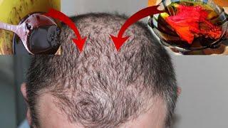 40 साल पुराने गंजे सर पर भी कुछ  ही दिनों में नए बाल उग आयेंगे / hear lose treatment