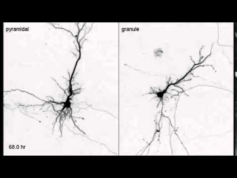 PLoS ONE : Differentiation of Apical and Basal Dendrites in Pyramidal Cells and Granule Cells...
