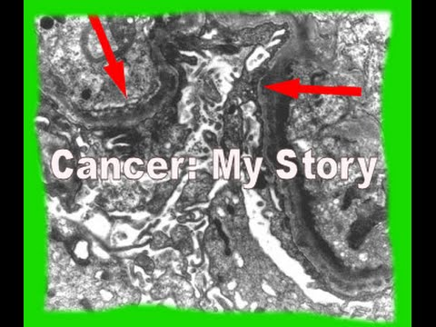 Cancer: My Story.  Light Chain Deposition Disease (LCDD), Myeloma