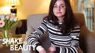 I'm Proud Of My Butterfly Skin | SHAKE MY BEAUTY