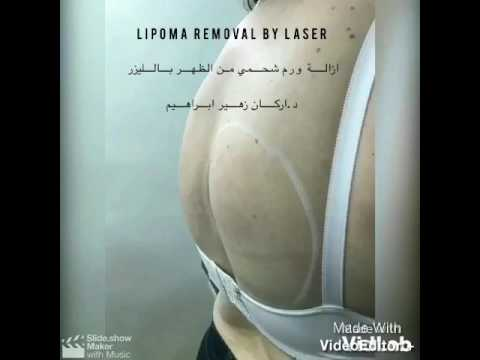 Lipoma removal by laser by Dr Arkan Zuhair