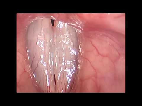 Rigid Stroboscopy Clinical Video