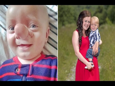 Real life Pinocchio Baby born with his brain growing into NOSE due to his skull not forming properly