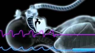 Obstructive Sleep Apnea and the ResMed S9 Algorithm