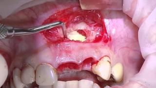 12 января. Удаление радикулярной кисты верхней челюсти. Эпизод 2.(, 2014-02-10T12:01:19.000Z)