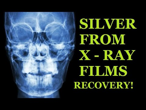 Silver From X-RAY FILMS Recovery!