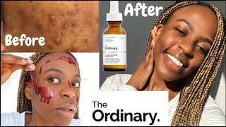 SKIN | How To Get Rid of Acne & hyperpigmentation Using THE ORDINARY | SKINCARE ROUTINE