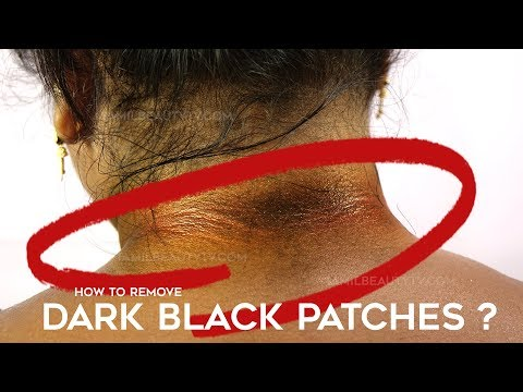 How to Get Rid of Dark Neck Tamil Beauty Tips | Remedy for Lighten Dark Neck