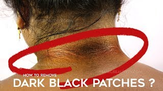 How to Get Rid of Dark Neck | Home Remedy Beauty Tips in Tamil