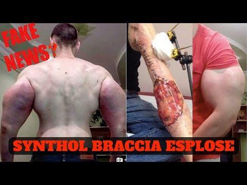 SYNTHOL MAN : BRACCIO ESPLOSO II TERESHIN KIRILL II FAKE NEWS ?