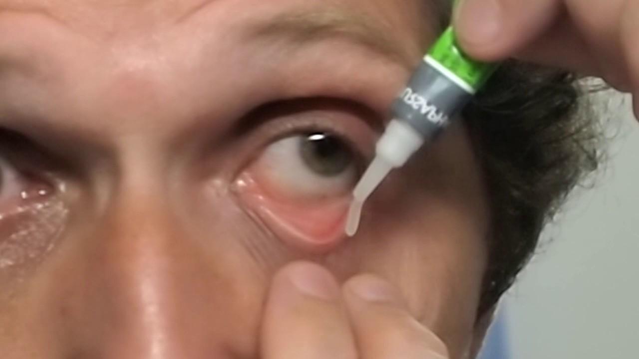 Мази и гели для глаз купить на сайте add. Ua. Тел. ☎ 0(800)500-129. ✓низкие цены. Add. Ua-ursapharm (германия)-гидрокортизон-пос 1% мазь глазная · гидрокортизон-пос 1% мазь глазная 2,5 г. Add. Ua-нижфарм (россия, нижний новгород)-тетрациклин 3% 15г · тетрациклин 3% 15г мазь. Нижфарм.
