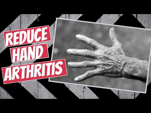 7 Tips to Reduce Hand Arthritis Pain (Physical Therapy Approved)