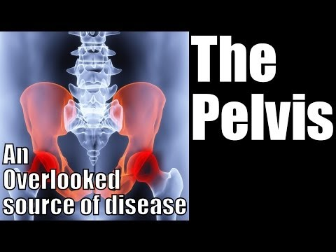 How to Recognize a Pelvis Problem