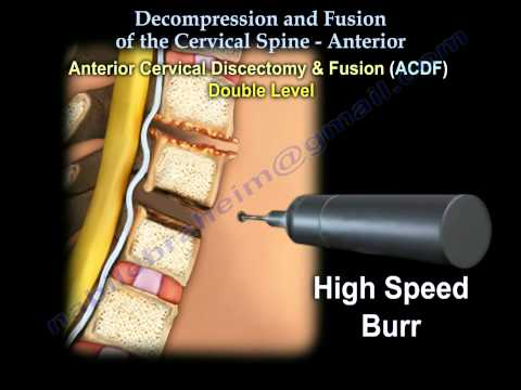 Cervical Spine ,Decompression And Fusion . - Everything You Need To Know - Dr. Nabil Ebraheim