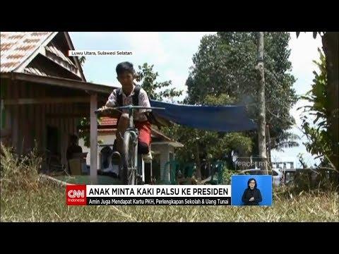 Anak Minta Kaki Palsu Ke Presiden Joko Widodo