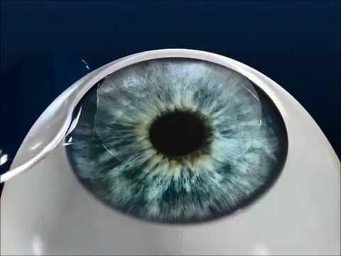 iDesign LASIK - at Maloney Vision Institute