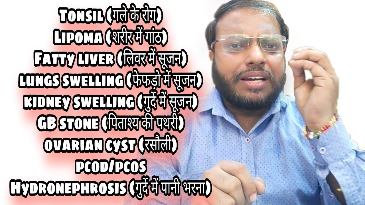 रामबाण देसी घरेलू नुस्खा जो अनेकों बीमारी में लाभदायक।Ayurvedic homemade remedies for Many diseases