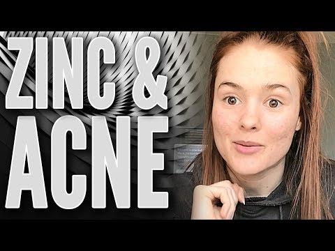 hqdefault - Zinc Deficiency Acne Vulgaris