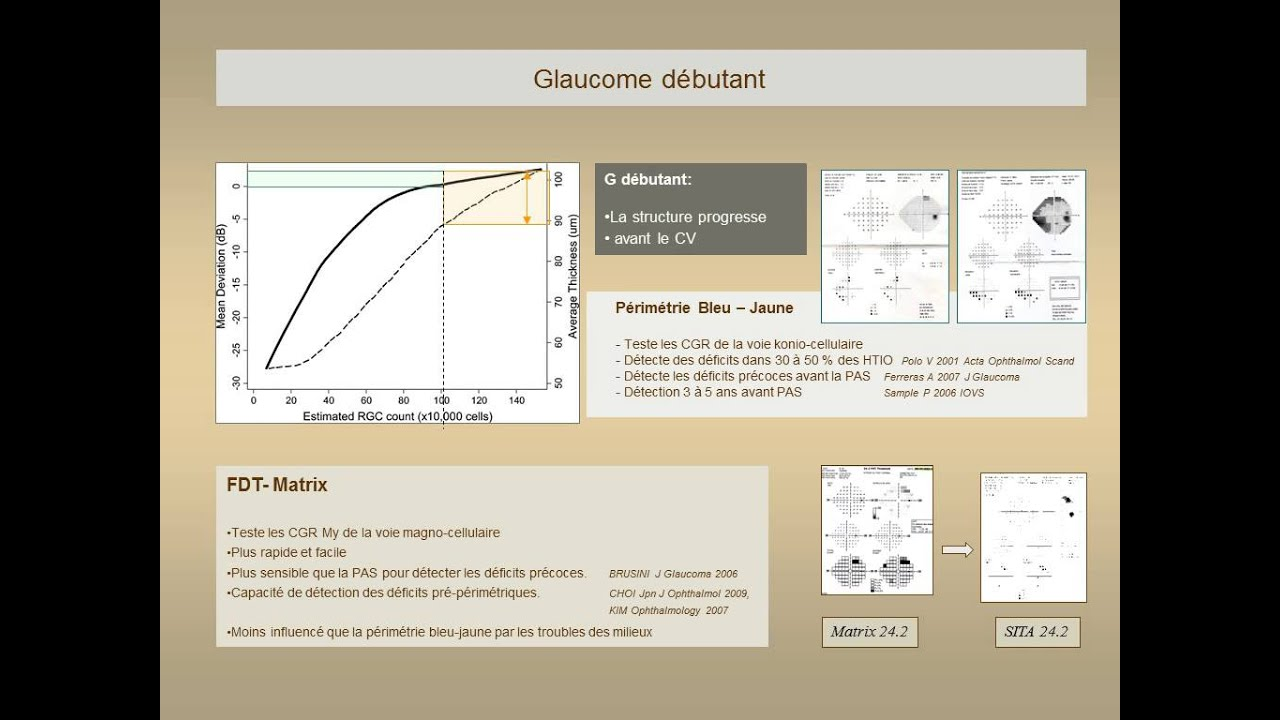 Surveillance du glaucome : Champ Visuel. May F. - YouTube Surveillance du glaucome : Champ Visuel. May F.