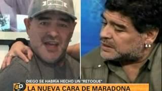 La nueva cara de Maradona - Telefe Noticias