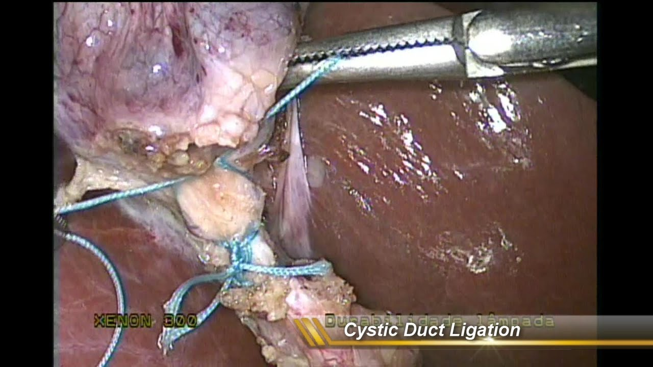 Cholecystectomy - No Clips - Cystic Duct Ligation - 5mm Trocars
