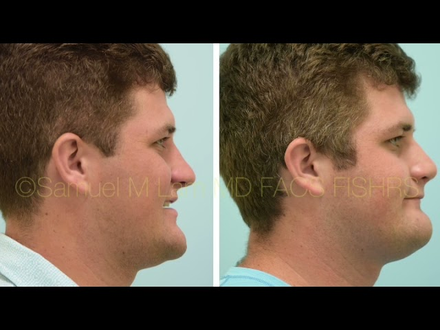 Dallas Rhinoplasty Before and After