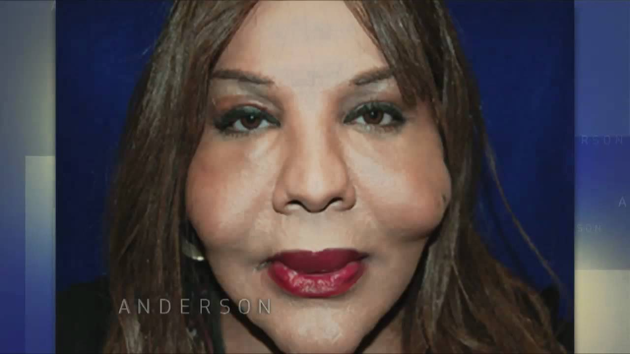 Botched Plastic Surgery What S Injected In Rajee S Cheeks
