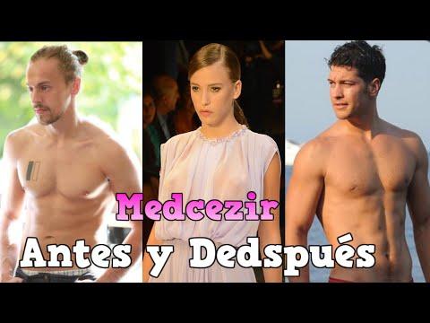Antes y despues 2016, Medcezir