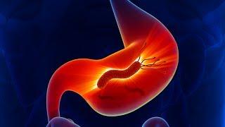 видео История болезни по гастроэнтерологии, история болезни больного с язвой желудка