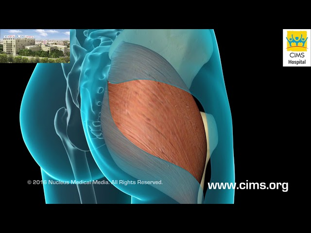Total Hip Replacement  (Hindi) - CIMS Hospital