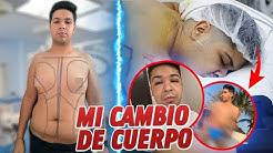 Alejandro-Flores-ME-OPER-TODO-EL-CUERPO-Y-AS-QUED-ALEX-FLORES