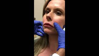 Vollure in Denver in the Nasolabial Folds