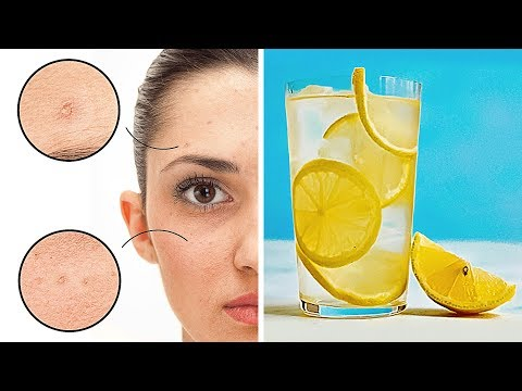Drinking Lemon Water Daily Helped Me Clear My Skin Off Pimples