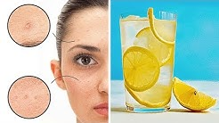 hqdefault - How Much Lemon Juice To Drink For Acne