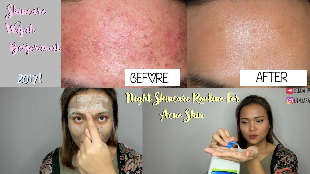 Night Skincare Routine Untuk Jerawat Beruntusan Berminyak Dinda Shafay Bahasa Youtube