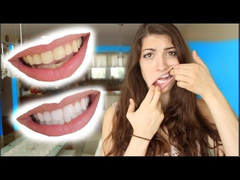 How To Whiten Teeth In 2 Minutes Guaranteed Whiten Teeth Youtube