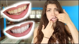How to Whiten Teeth in 2 Minutes! [guaranteed whiten teeth]