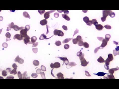 Blood Sickle Cell Anemia Youtube